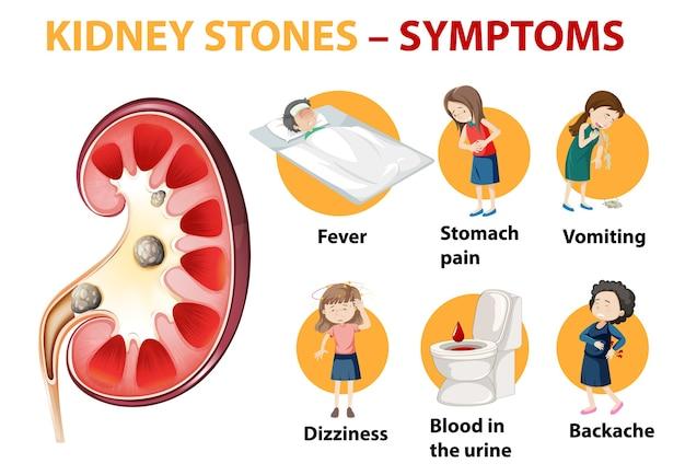 Infographie de style de dessin animé de symptômes de calculs rénaux