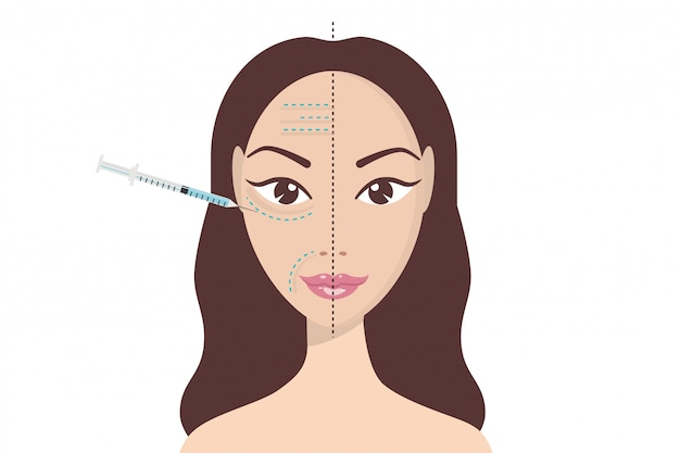 Injection faciale d'acide hyaluronique