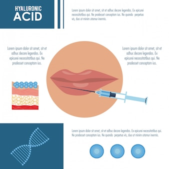 Injection de remplissage d'acide hyaluronique infographique