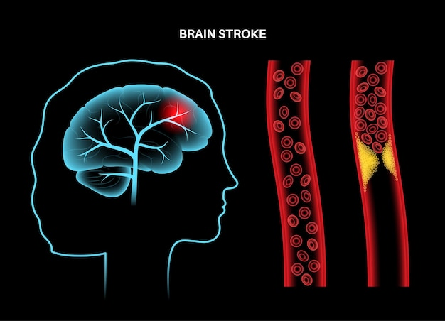 Isémique d'avc cérébral