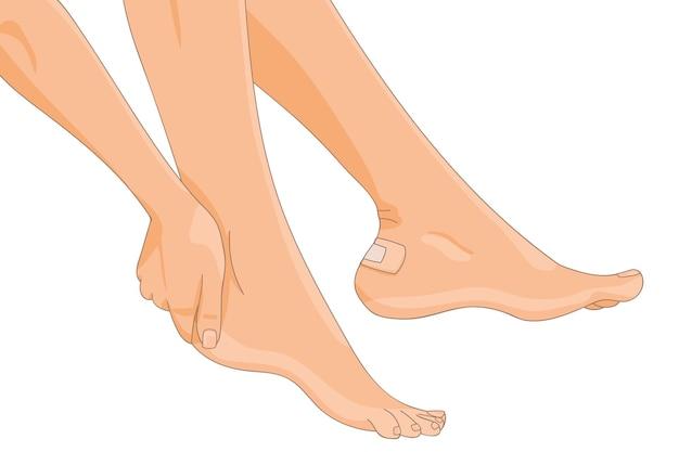 Jambes féminines nues avec pansement blister appliqué sur un talon vue latérale bandage en bande médicale