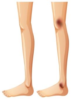 Jambes humaines et ecchymose sur fond blanc