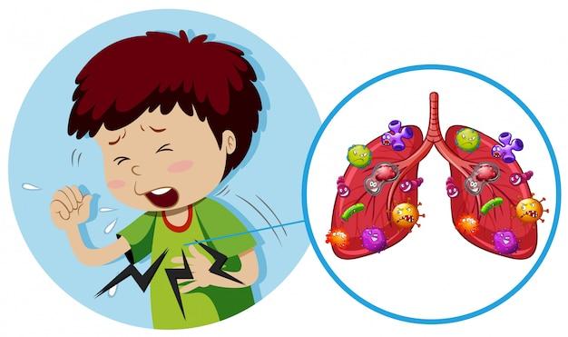 Jeune garçon avec des bactéries sur les poumons