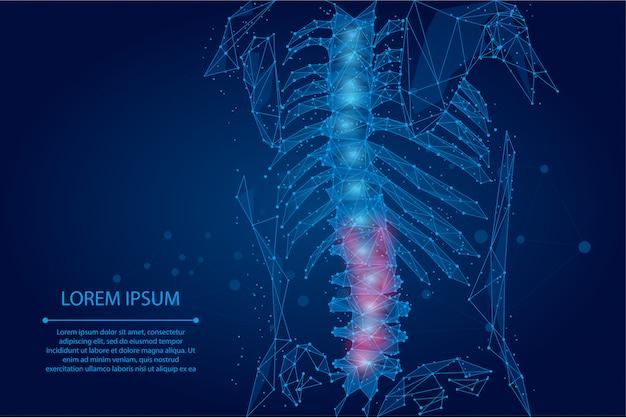 Ligne de maille abstraite et point de colonne vertébrale humaine de physiothérapie. hernie arrière femelle de rendu polygonal