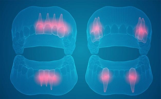 Mâchoire humaine mise en page 3d médecine et santé des dents de la douleur