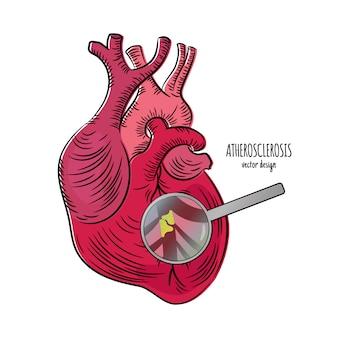 Maladie cardiaque athérosclérose médecine éducation