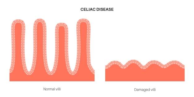 Maladie coeliaque. des villosités intestinales endommagées et saines dans la surface des parois intestinales.