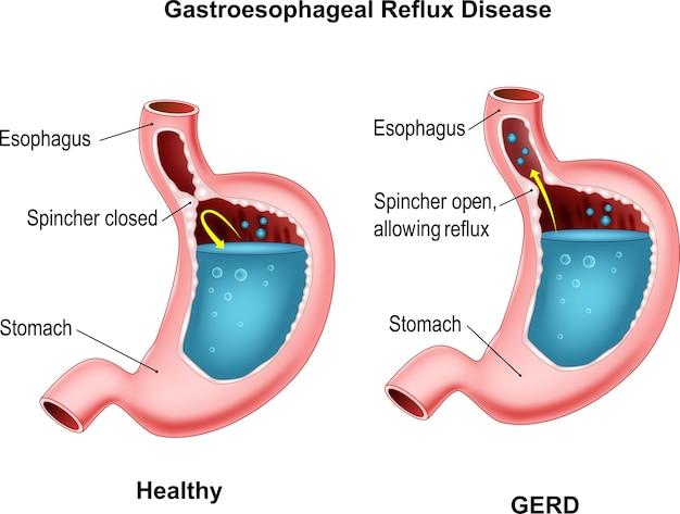La maladie de reflux gastro-oesophagien