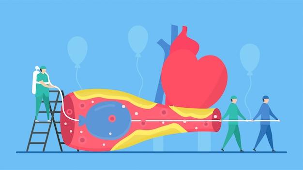 La maladie rétrécit la bannière des artères coronaires