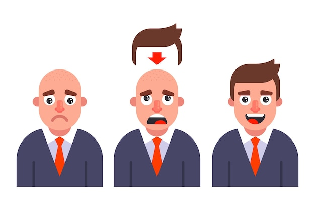 Mettez une perruque sur un homme. chute de cheveux précoce. illustration vectorielle plane.