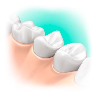 Modèle intra-oral et réaliste pour produit d'hygiène ou de soins dentaires