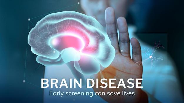 Modèle de technologie des maladies du cerveau