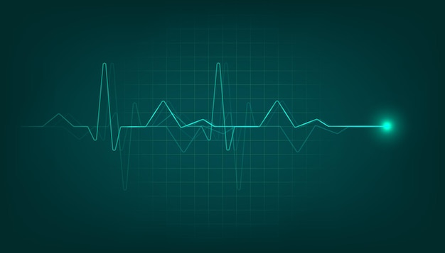 Moniteur de pouls cardiaque vert avec signal. fond de cardiogramme de battement de coeur.