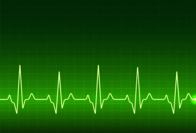 Moniteur de rythme cardiaque ecg, onde de ligne de pouls cardiaque de cardiogramme. formation médicale d'électrocardiogramme.