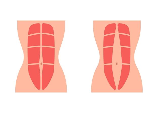 Muscle abdominal de tonus normal et diastasis recti faible et muscle abdominal de divergence
