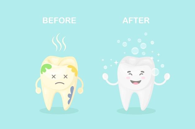 Nettoyer et blanchir les dents