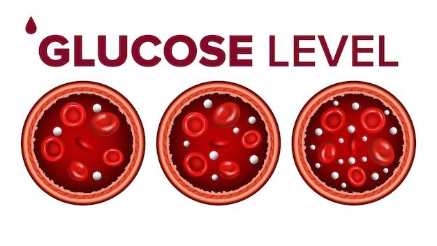Niveau de sucre dans le sang et les globules rouges