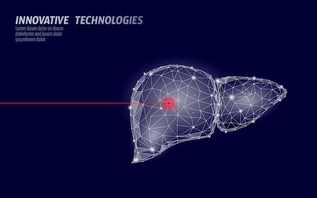 Opération de chirurgie au laser du foie humain low poly. médecine maladie traitement médicamenteux zone douloureuse. forme de rendu 3d polygonale triangles rouges. illustration de modèle de pharmacie pour le cancer de l'hépatite