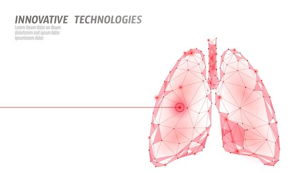 Opération de chirurgie au laser des poumons humains low poly. médecine maladie traitement médicamenteux zone douloureuse. forme de rendu 3d polygonale triangles rouges. illustration de modèle de pharmacie de cancer de la tuberculose