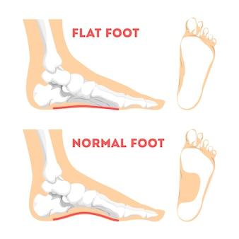 Pathologie du pied humain. anatomie du pied plat