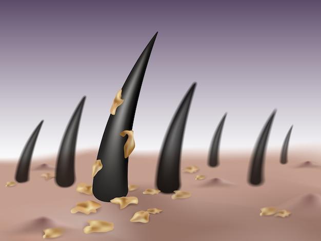 Pellicules dans les cheveux et le cuir chevelu causant des germes et des cloques ou des boutons sur la tête.