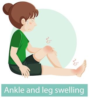 Personnage de dessin animé avec des symptômes de gonflement de la cheville et de la jambe