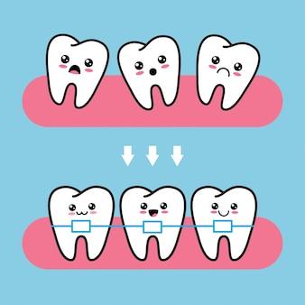 Personnages mignons de dents kawaii avant et après correction de l'accolade