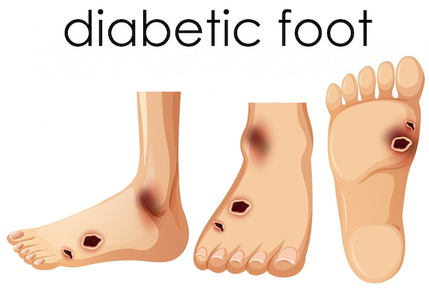 Pied humain avec diabétique