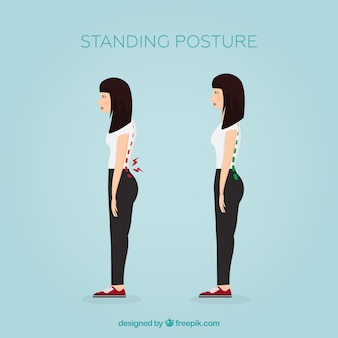Posture debout correcte et incorrecte