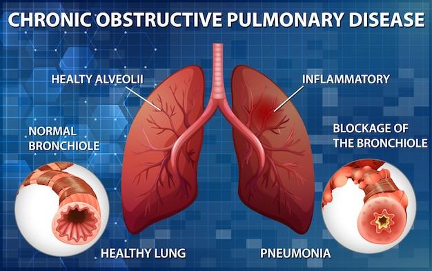 Poumon avec maladie pulmonaire obstructive chronique