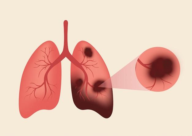 Poumons dissous