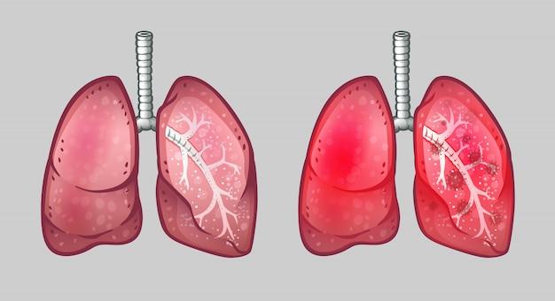 Poumons humains sains et infectés par des virus