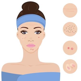 Problème de peau jeune femme.