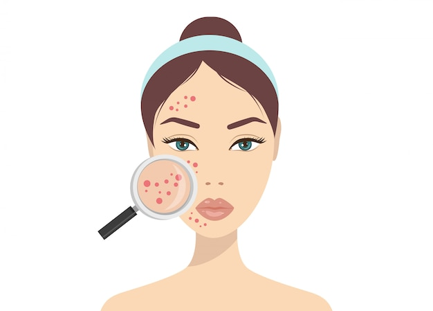 Problèmes de peau d'acné. femme tenant une loupe pour regarder l'acné kystique sur son visage. illustration vectorielle sur le concept de problème de peau