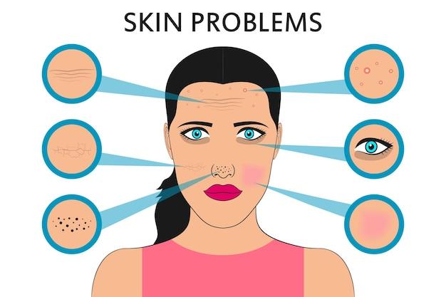 Problèmes de peau du visage féminin acné et boutons taches noires rougeur sécheresse cernes sous les yeux