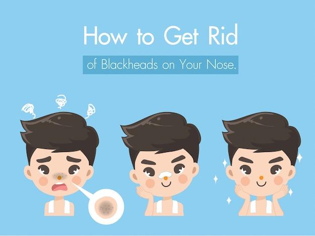 La procédure pour traiter les boutons sur le nez afin d'être plus beau et plus confiant si vous fournissez des boutons et des points noirs clairs et clairs.