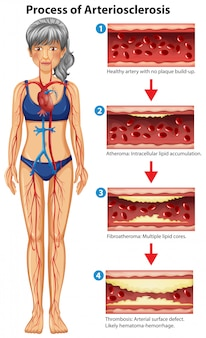 Processus d'illustration médicale artériosclérose