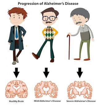 Une progression de la maladie d'alzheimer