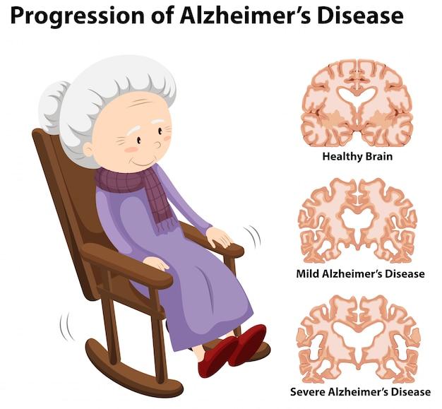 Progression de la maladie d'alzheimer