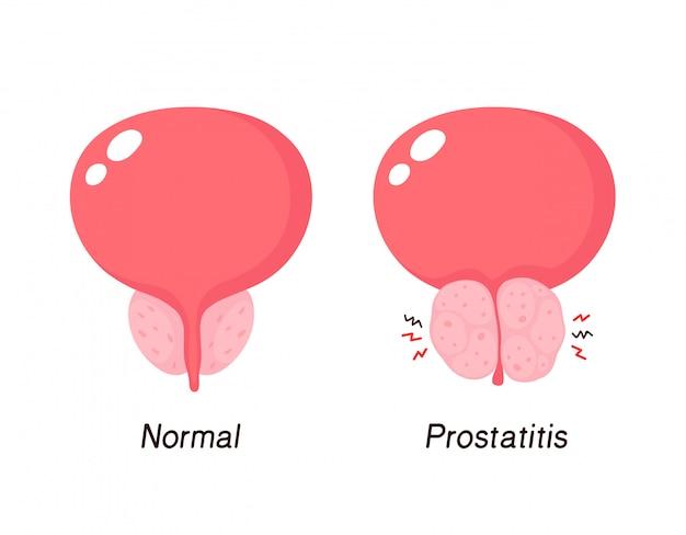 Prostate Normale Et Hyperplasie Bénigne De La Prostate Vecteur Premium