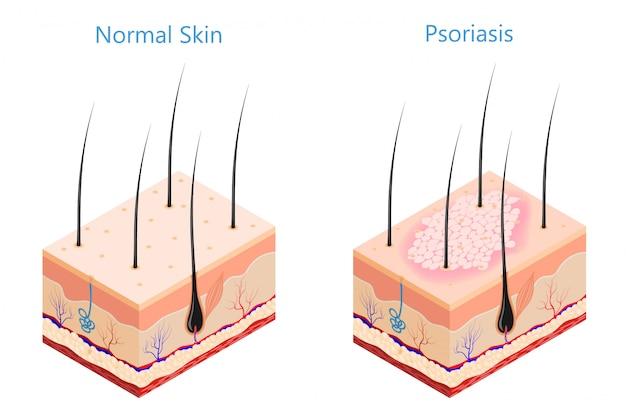 Psoriasis cutané à problèmes de médecine