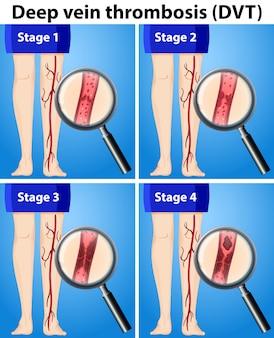 Quatre étapes de la thrombose veineuse profonde