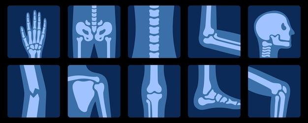 Radiographie des os examen des radiographies de l'anatomie des articulations humaines, illustration médicale, éducative et scientifique