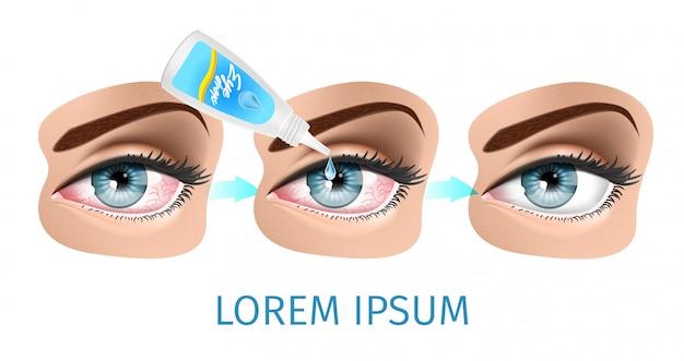 Schéma du syndrome de l'oeil sec