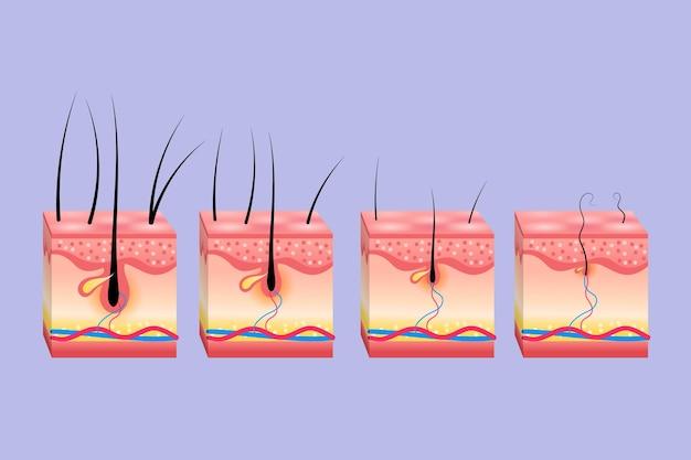 Schéma de perte de cheveux en dégradé