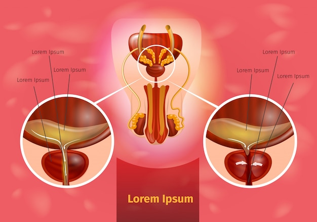 Schéma de vecteur réaliste de prostatite