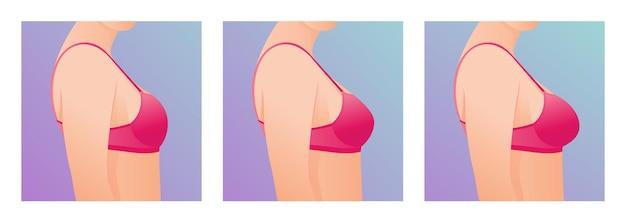 Seins féminins en soutien-gorge avant et après l'augmentation concept de chirurgie plastique