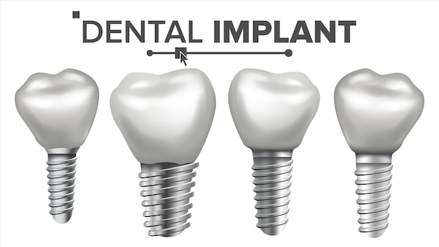 Set d'implants dentaires