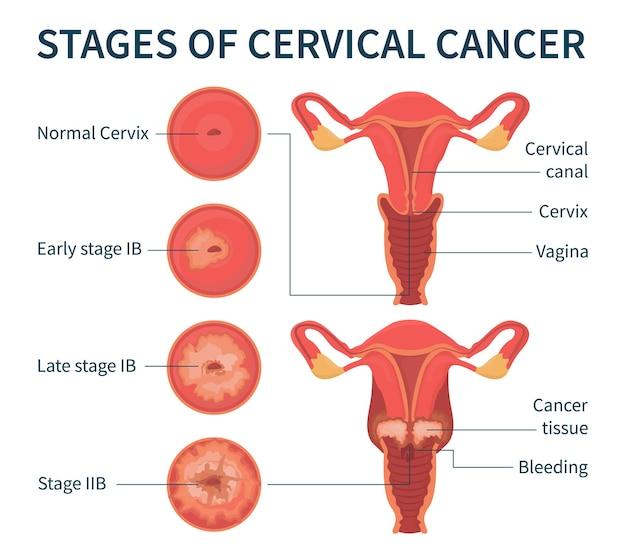 Stades du cancer du col de l'utérus