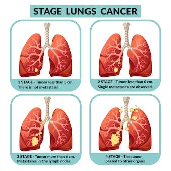Stades du cancer des poumons.